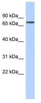 Western blot - LPP antibody (ab87212)