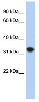 Western blot - CENPP antibody (ab87215)