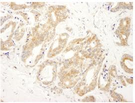 Immunohistochemistry (Formalin/PFA-fixed paraffin-embedded sections) - DDX6 antibody (ab87321)