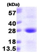 SDS-PAGE - SAR1 protein (His tag) (ab87626)
