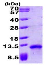 SDS-PAGE - TARC protein (His tag) (ab87634)