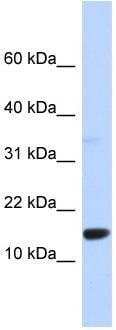 Western blot - Anti-Tumor protein D52 like 3 antibody (ab87659)