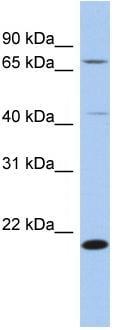 Western blot - AMD1 antibody (ab87661)