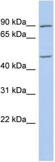 Western blot - PLAG1 antibody (ab87662)