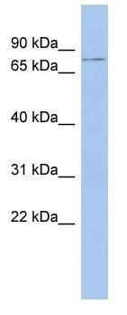 Western blot - C17orf104 antibody (ab87712)