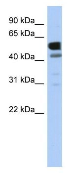 Western blot - LDHD antibody (ab87741)