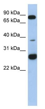 Western blot - C1orf110 antibody (ab87742)