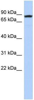 Western blot - LOC81691 antibody (ab87792)