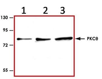 Western blot - Anti-PKC delta + PKC theta antibody (ab89488)