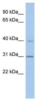 Western blot - PGAP3 antibody (ab89711)