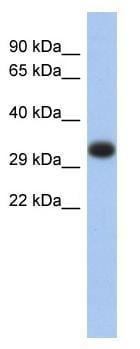 Western blot - HLA DP antibody (ab89712)