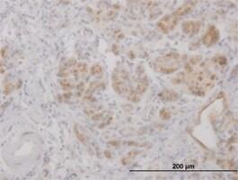 Immunohistochemistry (Formalin/PFA-fixed paraffin-embedded sections) - Anti-Lipocalin-2 / NGAL antibody (ab89819)
