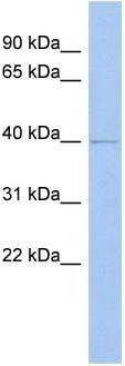 Western blot - ZADH2 antibody (ab89846)