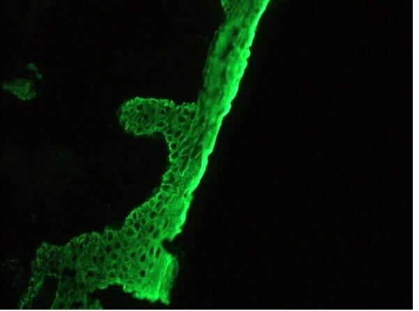 Immunohistochemistry (Frozen sections) - Anti-basal cell Cytokeratin antibody [RCK103] (ab9222)