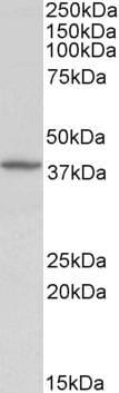 Western blot - Decorin antibody (ab90425)