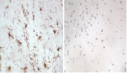 Immunohistochemistry (Formalin/PFA-fixed paraffin-embedded sections) - GFAP antibody (ab90601)