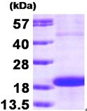 SDS-PAGE - Skp1 protein (Human) (ab90687)