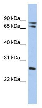 Western blot - OVOL2 antibody (ab90692)