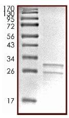 SDS-PAGE - Casein  protein (ab91090)