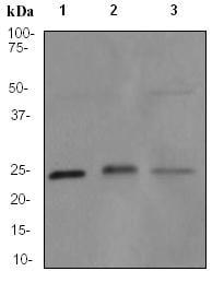 Western blot - Lysophospholipase 1 antibody [EPR3667] (ab91606)