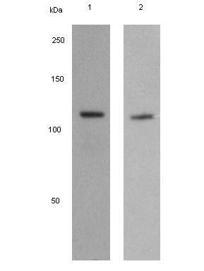 Western blot - JAK3 antibody [EPR908(2)] (ab92595)