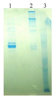 SDS-PAGE - Vitronectin protein (Human) (ab92683)