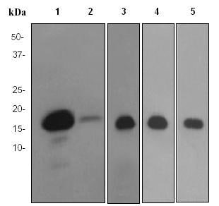 Western blot - Myosin Light Chain 2 antibody [EPR3741] (ab92721)