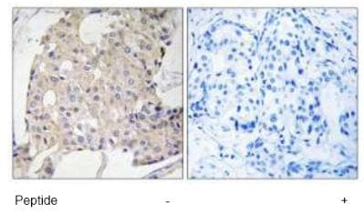 Immunohistochemistry (Formalin/PFA-fixed paraffin-embedded sections) - NDRG3 antibody (ab92850)