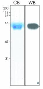 SDS-PAGE - Ephrin B2 protein (Fc Chimera His Tag) (ab92862)