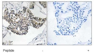 Immunohistochemistry (Formalin/PFA-fixed paraffin-embedded sections) - RSAD1 antibody (ab92905)