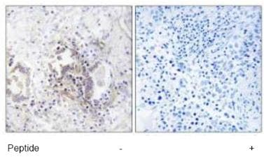 Immunohistochemistry (Formalin/PFA-fixed paraffin-embedded sections) - CHML antibody (ab92906)