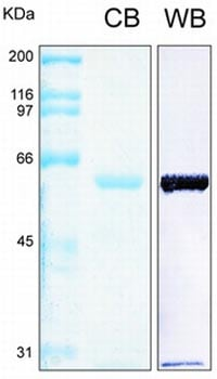SDS-PAGE - Annexin A10 protein (Tagged) (ab93007)