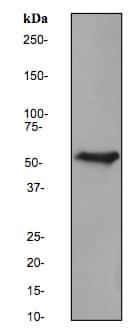 Western blot - Anti-Cytokeratin 6 antibody [EPR1602Y] (ab93279)