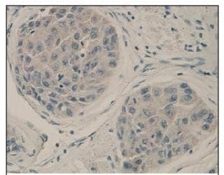 Immunohistochemistry (Formalin/PFA-fixed paraffin-embedded sections) - ACVRL1 antibody (ab93595)