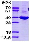 SDS-PAGE - AKR1C1 protein (His tag) (ab93730)