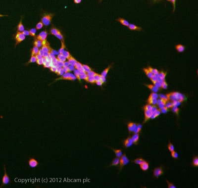 Immunocytochemistry/ Immunofluorescence - Anti-LIM kinase 2b antibody (ab93854)