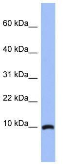 Western blot - ACBD7 antibody (ab94442)
