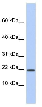 Western blot - Host cell factor C1 regulator 1 antibody (ab94445)