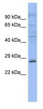 Western blot - PLEKHB2 antibody (ab94541)