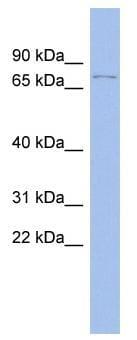 Western blot - p73 antibody (ab94554)