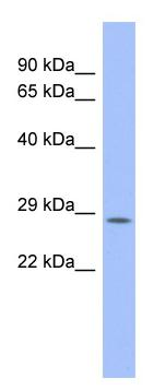Western blot - PSMB10 antibody (ab94623)