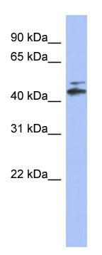 Western blot - CYP20A1 antibody (ab94625)