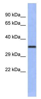 Western blot - Anti-Wnt4 antibody (ab94742)