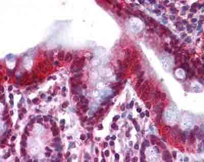 Immunohistochemistry (Formalin/PFA-fixed paraffin-embedded sections) - Anti-HNF-4-alpha antibody (ab94748)