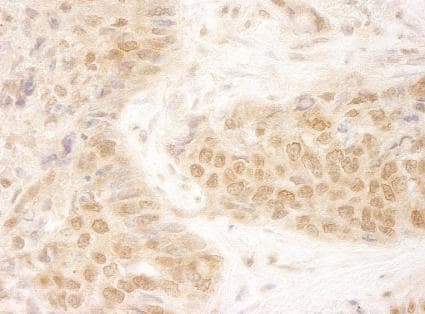 Immunohistochemistry (Formalin/PFA-fixed paraffin-embedded sections) - MCAK antibody (ab95126)