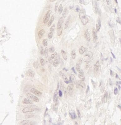 Immunohistochemistry (Formalin/PFA-fixed paraffin-embedded sections) - CASC5 antibody (ab95127)