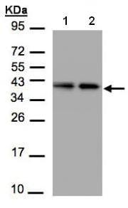 Western blot - TBCC antibody (ab96065)