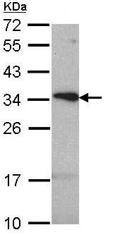 Western blot - TSPAN1 antibody (ab96068)