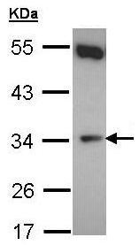 Western blot - CYB5R1 antibody (ab96103)