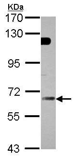 Western blot - GBP5 antibody (ab96119)